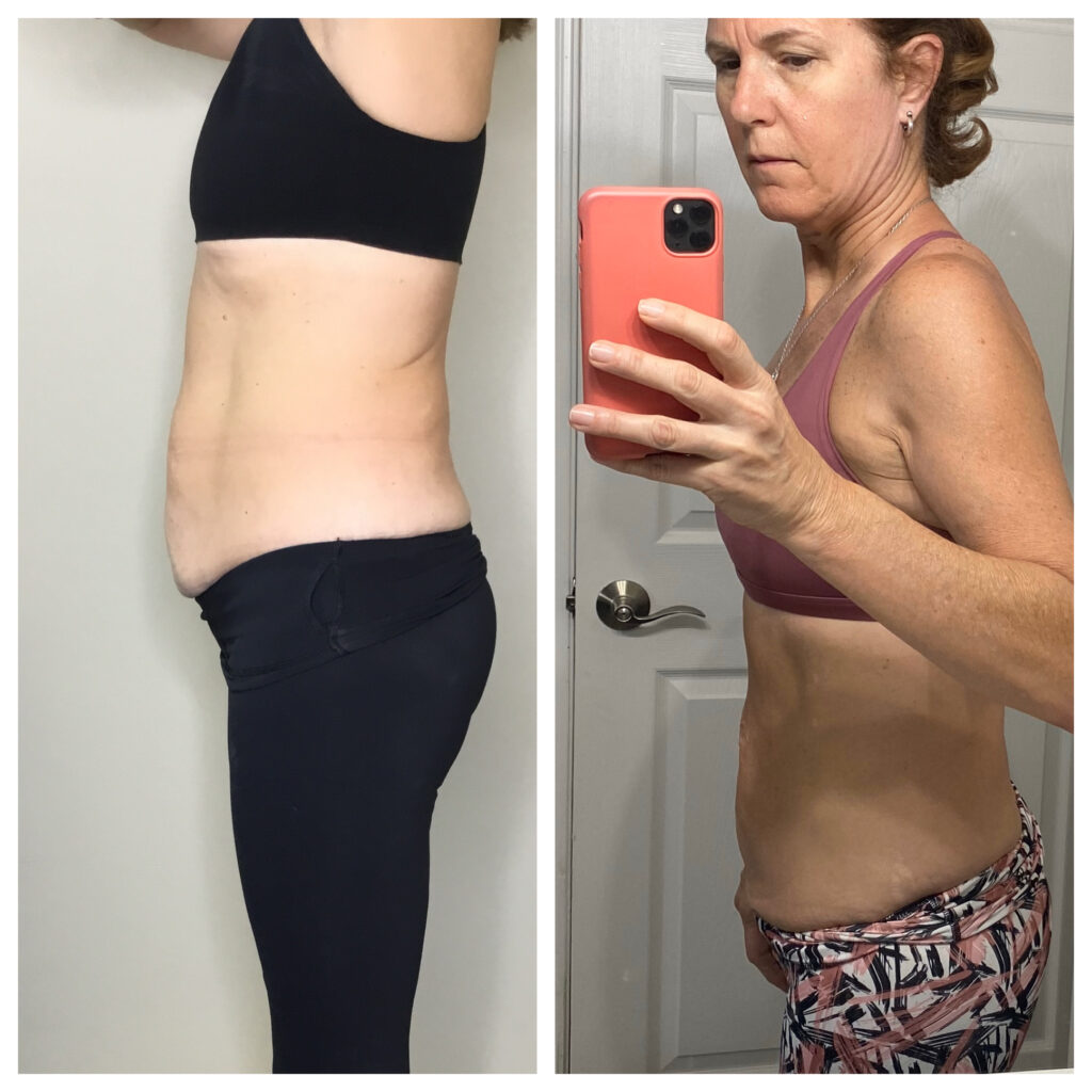 coolsculpting before and after near me